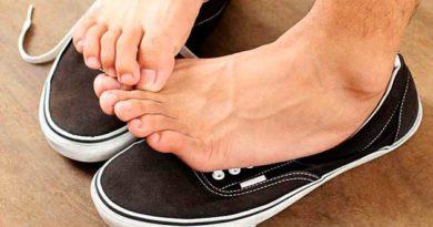 Якщо ноги сильно пітніють