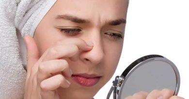 Гормональна контрацепція при проблемній шкірі