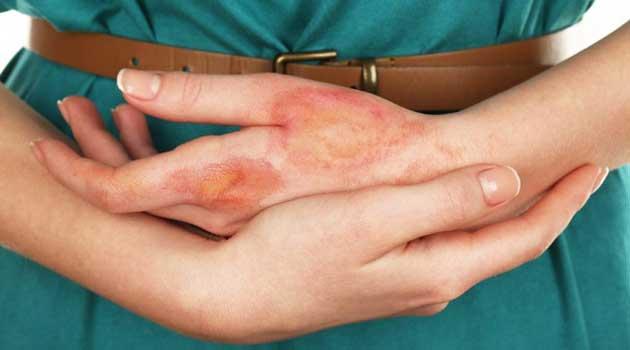 Народні засоби лікування опіків