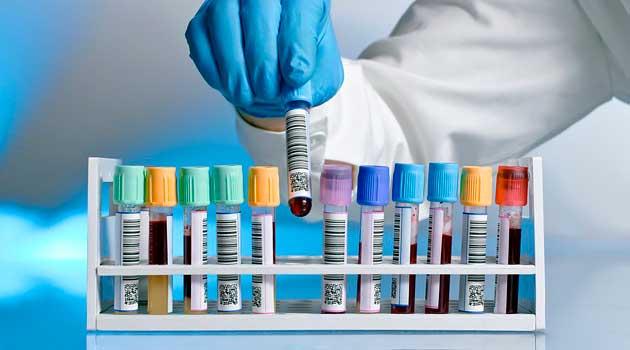 Які аналізи потрібно здати щоб дізнатися більше про своє здоров'я