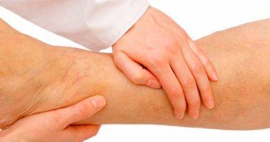 Як лікувати тромбофлебіт