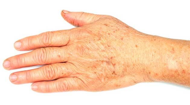 Пігментні плями на руках