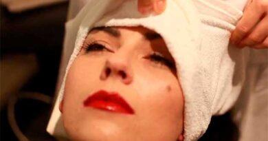 Від головного болю – сольовий компрес
