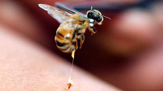 Якщо вкусила бджола
