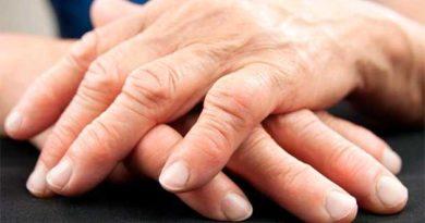 Артрит пальців рук