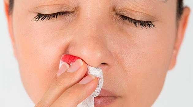 Як боротися з носовою кровотечею