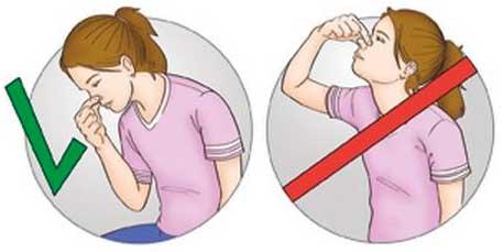 Правильне і неправильне положення тіла при носовій кровотечі