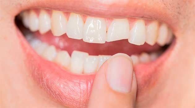 Що робити коли хитаються зуби