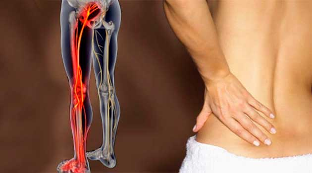Запалення сідничного нерва: причини й лікування