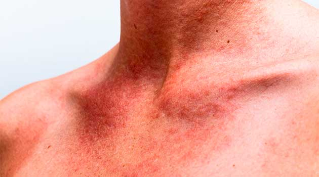 Алергія на сoнцe