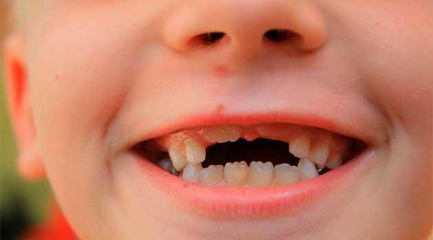 Порядок зміни молочних зубів у дітей